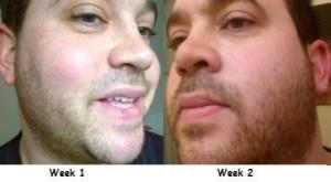 Drew week 1 to week 2