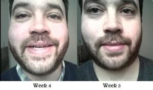 Drew Week 4 to Week 5