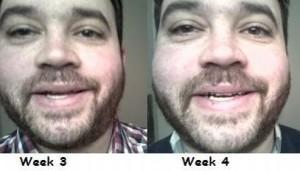 Drew week 3 to week 4
